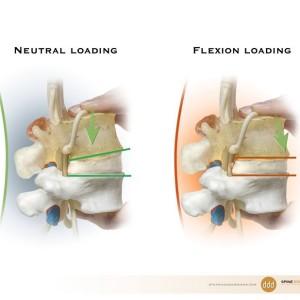 DDD L4-L5 Lumbar Herniation Disc Model